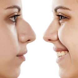 Nose Job – Liquid Rhinoplasty