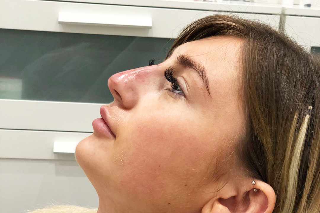 After-Liquid Rhinoplasty